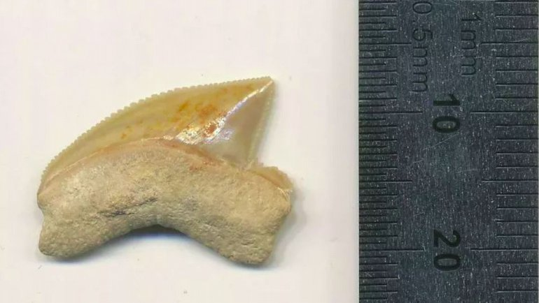 Olmaması gereken yerde bulunan diş
